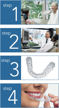 steps 1-4 of Invisalign treatment